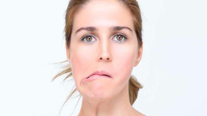 Doctor Abel Parálisis Facial