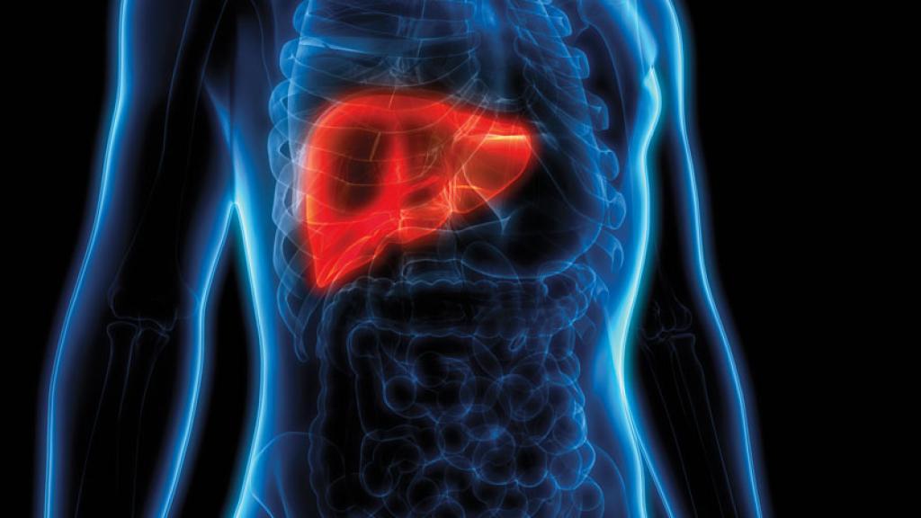 La cirrosis es una etapa tardía de la formación de cicatrices (fibrosis) en el hígado causada por diversas afecciones y enfermedades hepáticas.
