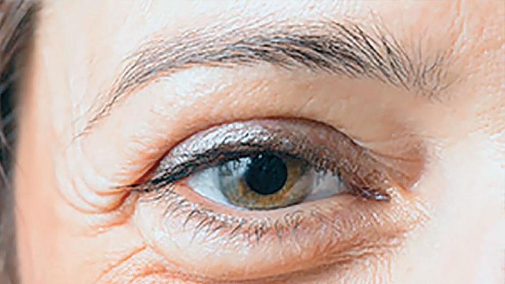Para disminuir las bolsas en los ojos, te recomiendoque tomes un licuado de leche de soya, piñay mango, 5 días por semana durante un mes.