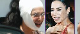 La cubana se dio otra 'manota de gato': primero se puso bótox, luego se estiró la cara y el cuello.